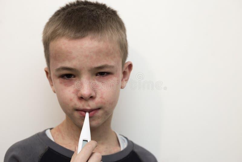 Το πορτρέτο του άρρωστου λυπημένου παιδιού αγοριών με το θερμόμετρο που έχει τον πυρετό που πάσχει από την ιλαρά ή η φλυκταινώδης στοκ φωτογραφίες με δικαίωμα ελεύθερης χρήσης
