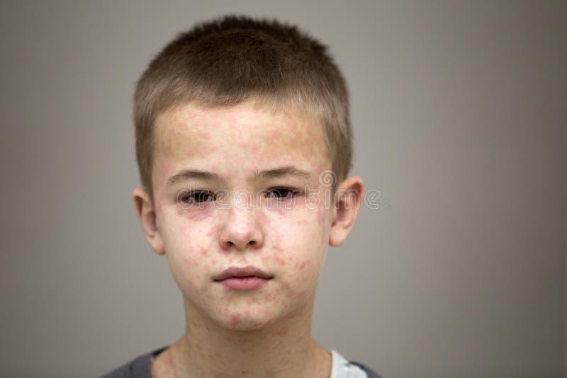 Το πορτρέτο του άρρωστου λυπημένου παιδιού αγοριών που πάσχει από την ιλαρά ή η φλυκταινώδης νόσος κοτόπουλου με τις προσκρούσεις στοκ εικόνες