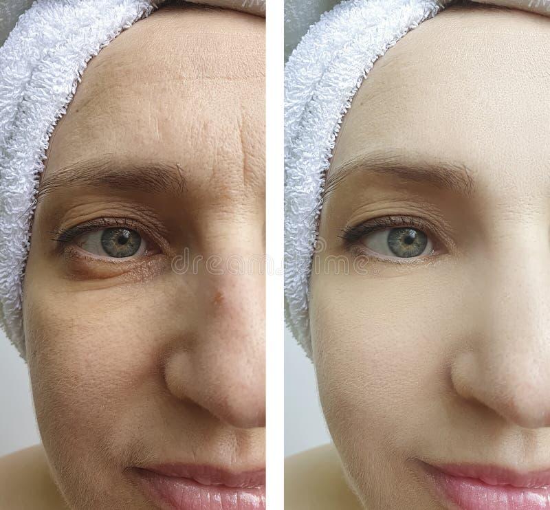 Το πρόσωπο γυναικών ζαρώνει πριν και μετά από τα αποτελέσματα διορθώσεων στοκ φωτογραφίες
