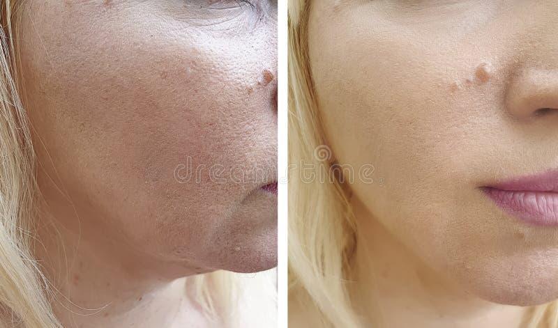 Το πρόσωπο γυναικών ζαρώνει πριν και μετά από την ένταση διορθώσεων αναζωογόνησης διαφοράς beautician στοκ φωτογραφίες
