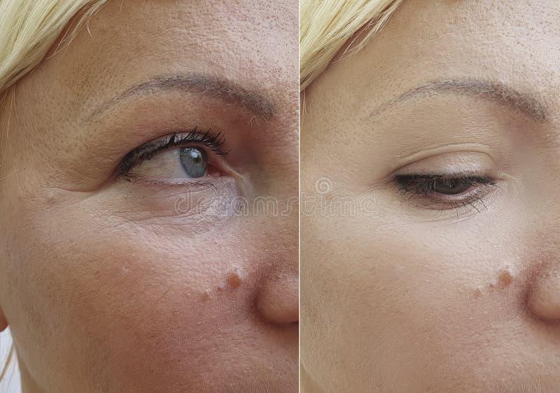 Το πρόσωπο γυναικών ζαρώνει πριν και μετά από την ένταση διορθώσεων αναζωογόνησης διαφοράς στοκ φωτογραφία με δικαίωμα ελεύθερης χρήσης