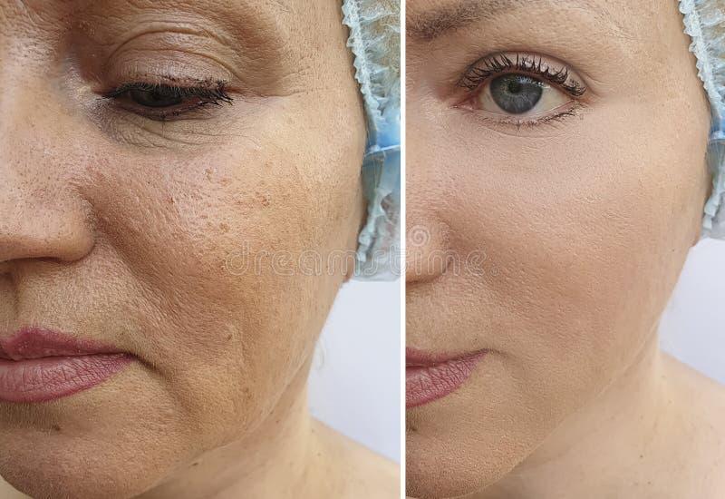 Το πρόσωπο γυναικών ζαρώνει πριν και μετά από την ένταση διορθώσεων αναζωογόνησης στοκ φωτογραφίες