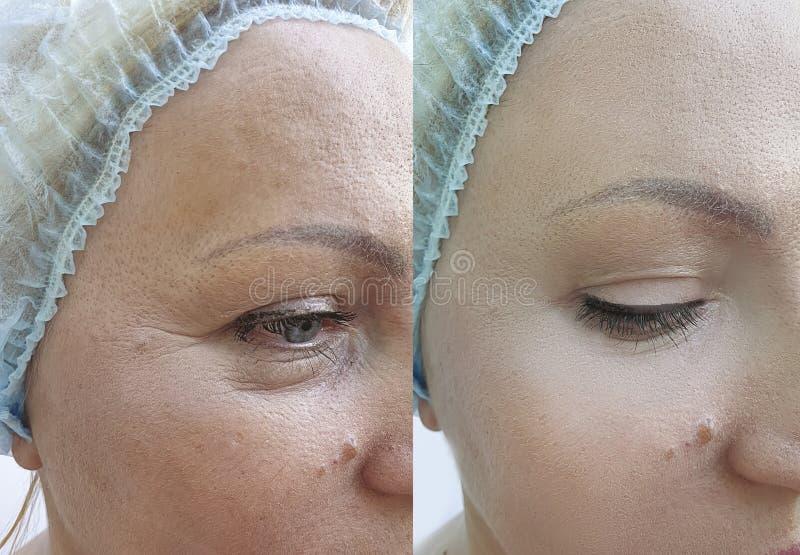 Το πρόσωπο γυναικών ζαρώνει πριν και μετά από την ένταση διορθώσεων στοκ φωτογραφίες