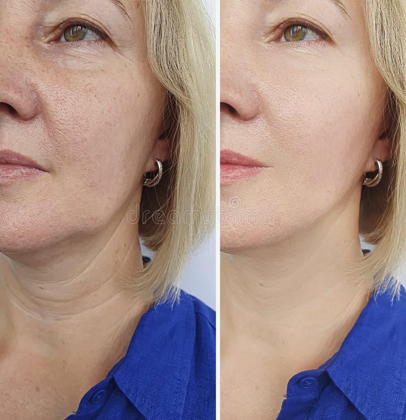 Το πρόσωπο γυναικών ζαρώνει πριν και μετά από την επεξεργασία έντασης ανανέωσης στοκ εικόνες