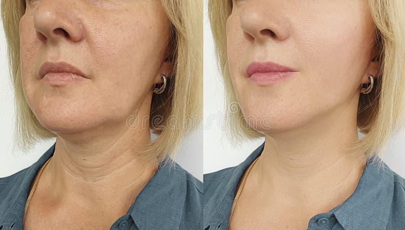 Το πρόσωπο γυναικών ζαρώνει πριν και μετά από την επεξεργασία έντασης στοκ εικόνες με δικαίωμα ελεύθερης χρήσης