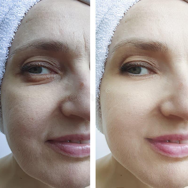 Το πρόσωπο γυναικών ζαρώνει πριν και μετά από τη διαφορά επεξεργασίας στοκ φωτογραφία