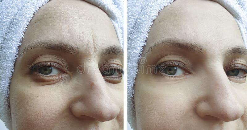 Το πρόσωπο γυναικών ζαρώνει πριν και μετά από τη διόρθωση στοκ εικόνες με δικαίωμα ελεύθερης χρήσης