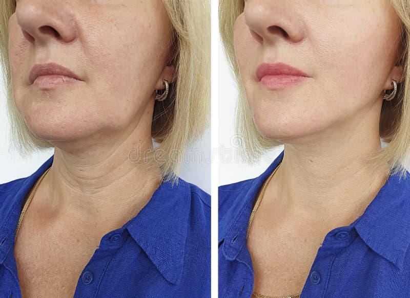 Το πρόσωπο γυναικών ζαρώνει πριν και μετά από τη θεραπεία έντασης ανανέωσης θεραπείας στοκ φωτογραφία