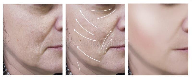 Το πρόσωπο γυναικών ζαρώνει πριν και μετά από τις διαδικασίες, σκλήρυνση δερμάτων βελών στοκ φωτογραφία με δικαίωμα ελεύθερης χρήσης