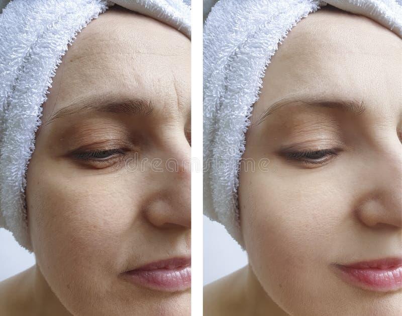Το πρόσωπο γυναικών ζαρώνει πριν και μετά από το resultsdifference διορθώσεων στοκ εικόνες με δικαίωμα ελεύθερης χρήσης