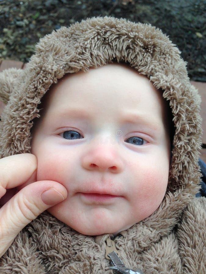 Το πρόσωπο ενός παιδιού με μια αλλεργία στοκ φωτογραφία