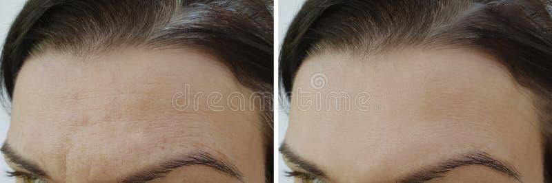 Το πρόσωπο ζαρώνει το μέτωπο πριν και μετά στοκ φωτογραφία