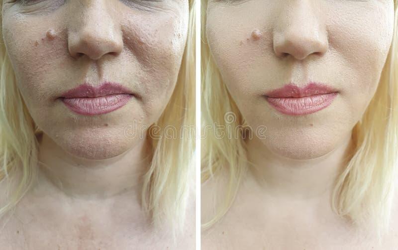 Το πρόσωπο ρυτίδων γυναικών οδηγεί ένταση διορθώσεων πριν και μετά από την επεξεργασία αντίθεσης στοκ φωτογραφία με δικαίωμα ελεύθερης χρήσης