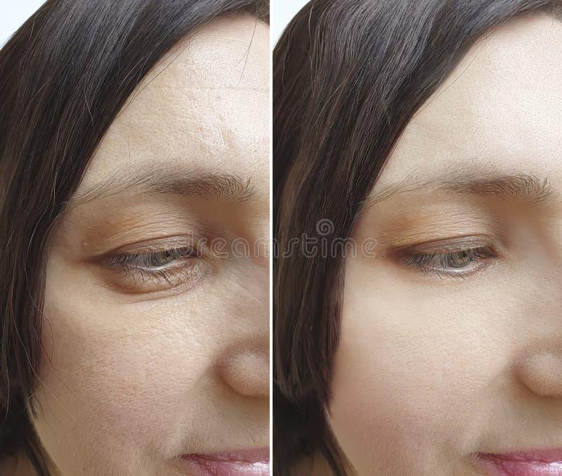 Το πρόσωπο ρυτίδων γυναικών οδηγεί διόρθωση πριν και μετά από την επεξεργασία αντίθεσης στοκ φωτογραφία με δικαίωμα ελεύθερης χρήσης