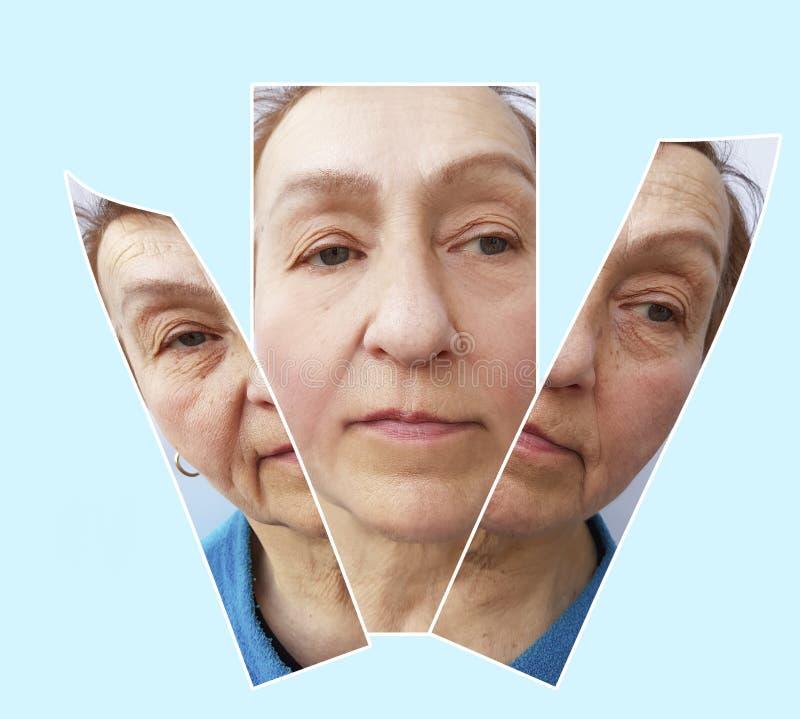 Το πρόσωπο Mwoman ζαρώνει πριν και μετά από την ανύψωση των καλλυντικών διαδικασιών αφαίρεσης χειρούργων, edicine κολάζ, διαδικασ στοκ εικόνα