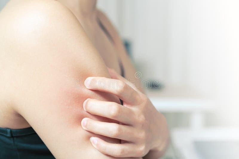 Το χέρι γυναικών γρατσουνίζει φαγουρίζει στο βραχίονα, την υγειονομική περίθαλψη και την έννοια ιατρικής στοκ φωτογραφία