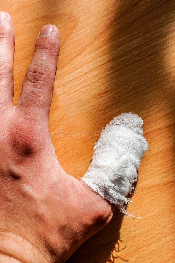 Το χέρι ενός λευκού με το τραυματισμένο δάχτυλό του έδεσε με έναν άσπρο επίδεσμο στοκ φωτογραφίες με δικαίωμα ελεύθερης χρήσης