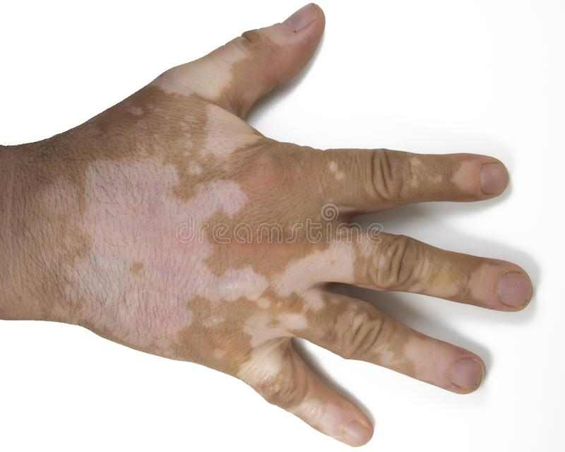 Το depigmentation δερμάτων επανδρώνει επάνω το χέρι στοκ εικόνες