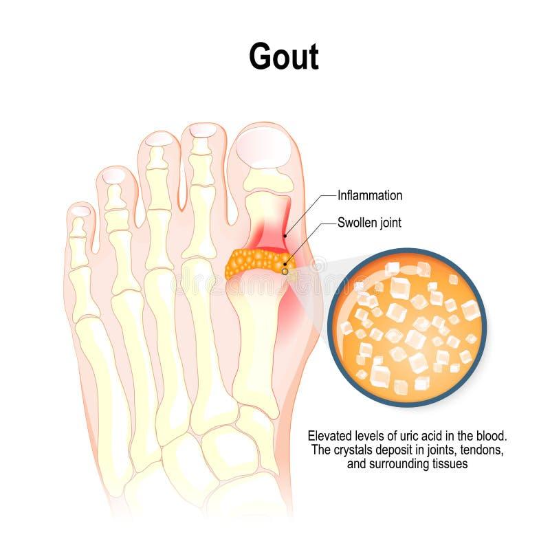 Το Gout είναι μια μορφή εμπρηστικής αρθρίτιδας απεικόνιση αποθεμάτων