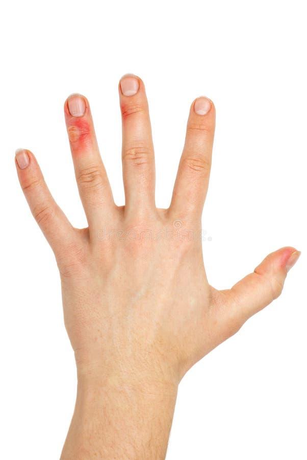 τραυματισμένος δάχτυλα φοίνικας στοκ φωτογραφίες