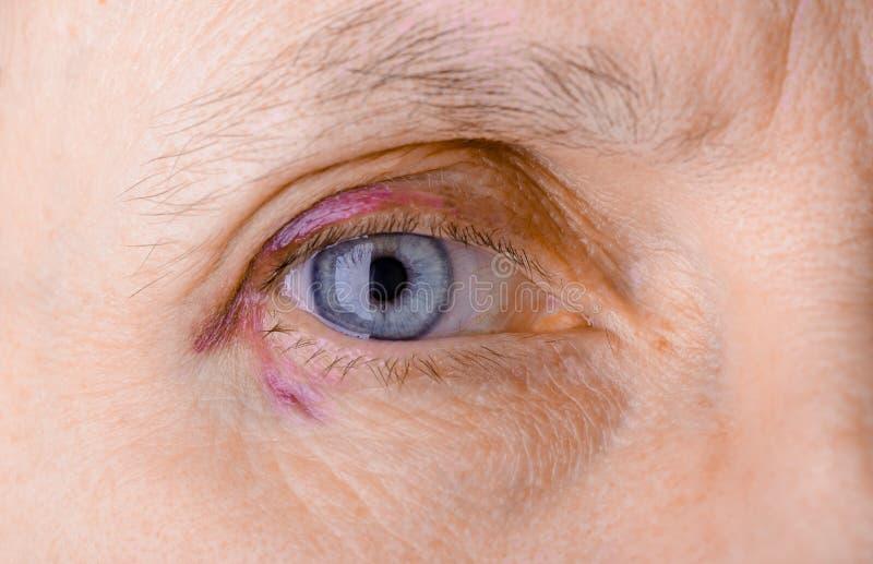 Τραυματισμένο μάτι λόγω της τριχοειδούς ρήξης στοκ εικόνες