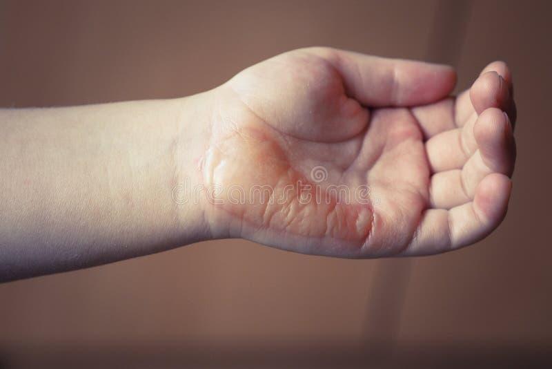 Τραυματισμός εγκαυμάτων στοκ φωτογραφία με δικαίωμα ελεύθερης χρήσης