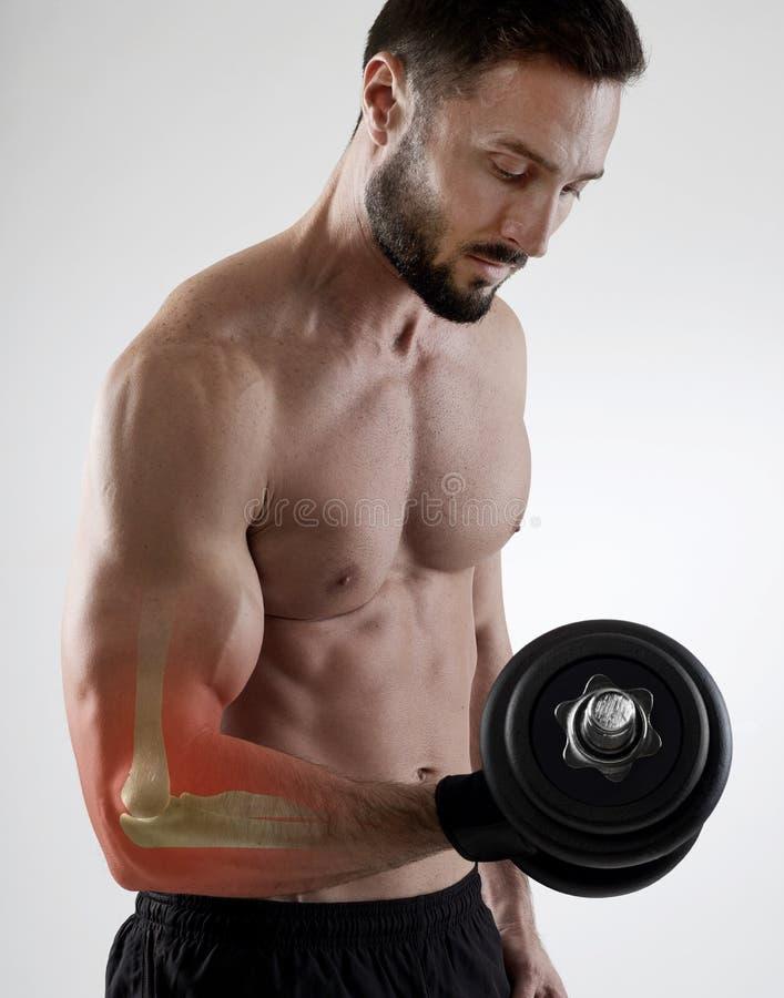 Τραυματισμός Weightlifting στοκ εικόνα