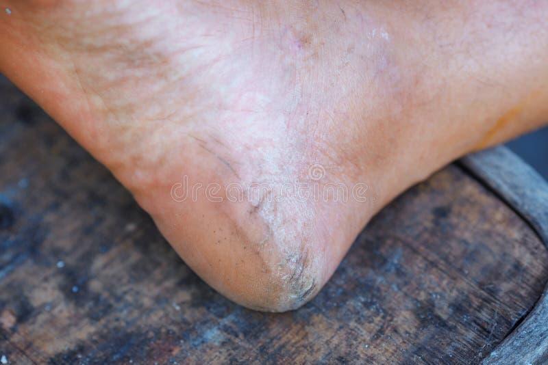 Τραχύ δέρμα σε ένα ανθρώπινο τακούνι στοκ εικόνα