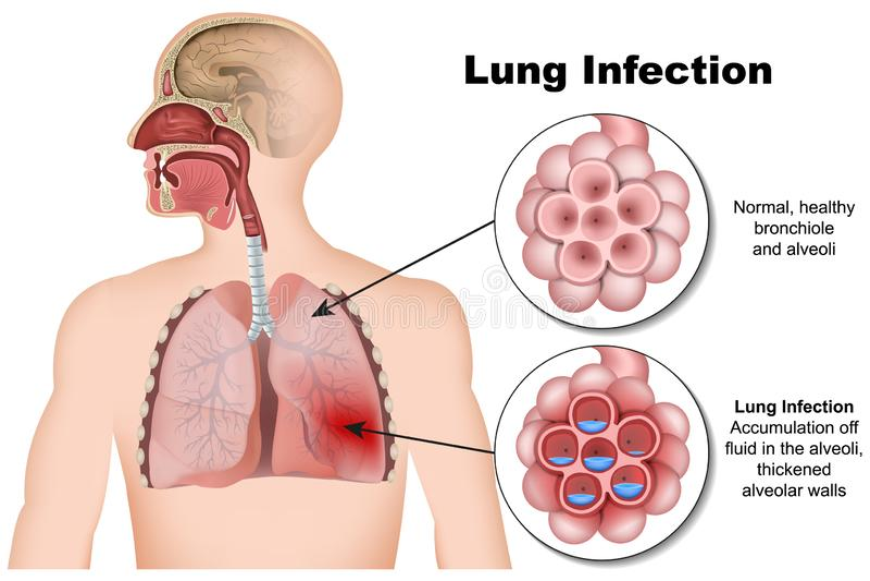 Τρισδιάστατη ιατρική απεικόνιση πνευμονίας μόλυνσης πνευμόνων στο άσπρο υπόβαθρο απεικόνιση αποθεμάτων