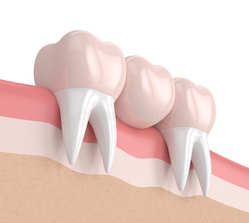 τρισδιάστατος δώστε της οδοντικής γέφυρας με τις οδοντικές κορώνες ελεύθερη απεικόνιση δικαιώματος