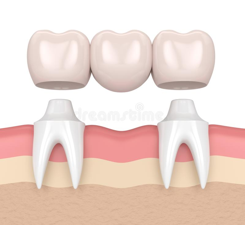 τρισδιάστατος δώστε της οδοντικής γέφυρας με τις οδοντικές κορώνες διανυσματική απεικόνιση
