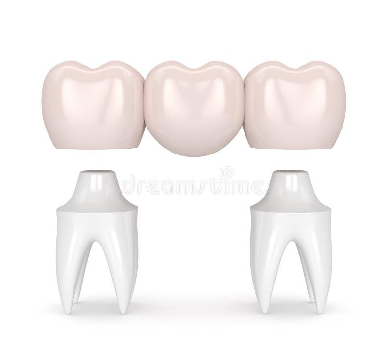 τρισδιάστατος δώστε της οδοντικής γέφυρας με τις οδοντικές κορώνες απεικόνιση αποθεμάτων