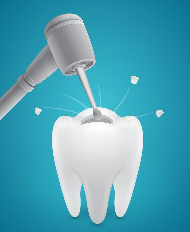 Τρυπώντας ανθρώπινο δόντι απεικόνιση αποθεμάτων