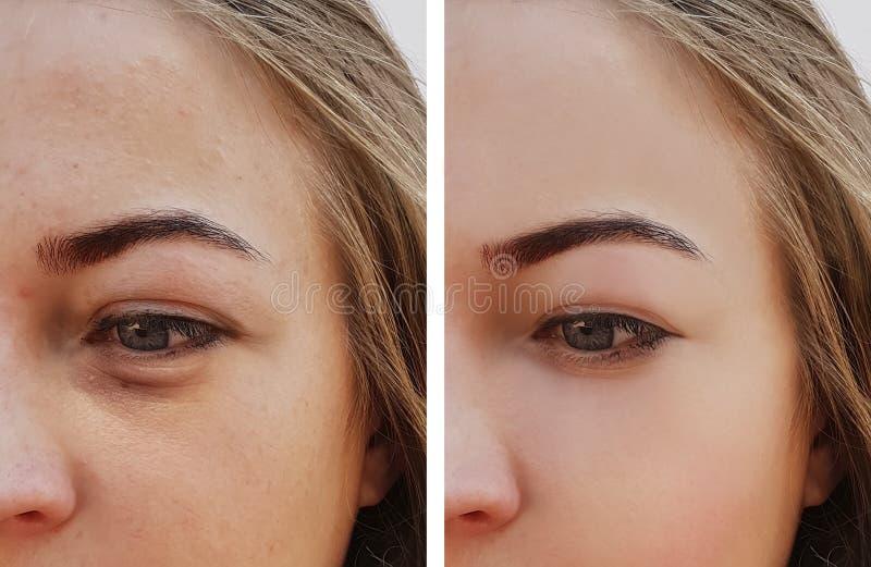 Τσάντα κοριτσιών ματιών κάτω από την αφαίρεση ματιών πριν και μετά από τις καλλυντικές διαδικασίες επεξεργασίας στοκ φωτογραφία με δικαίωμα ελεύθερης χρήσης