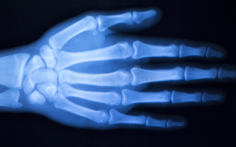 Των ακτίνων X ανίχνευση νοσοκομείων αντίχειρων δάχτυλων χεριών στοκ εικόνα