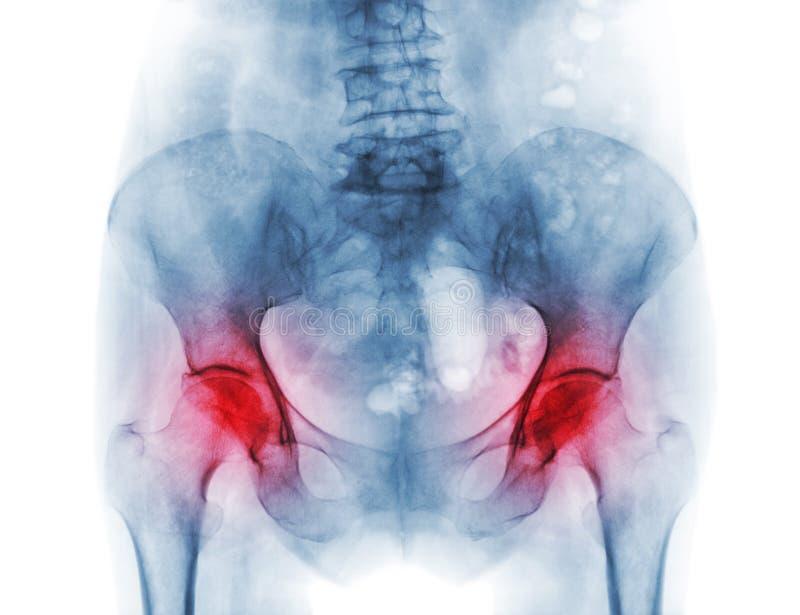 Των ακτίνων X λεκάνη ταινιών του ασθενή και της αρθρίτιδας οστεοπόρωσης και το δύο ισχίο στοκ φωτογραφία