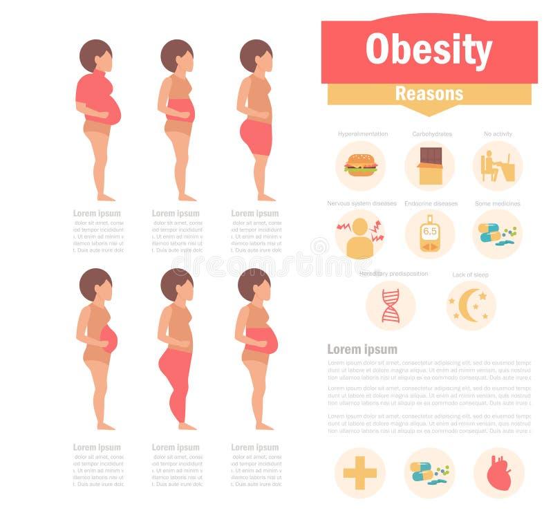 Τύποι και αιτίες παχυσαρκίας διανυσματική απεικόνιση
