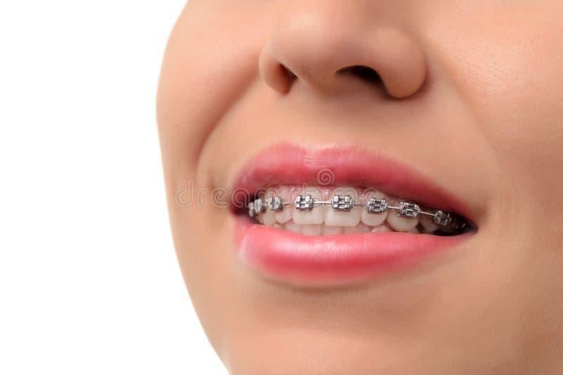 Υγιές χαμόγελο - δόντια με τα οδοντικά στηρίγματα στοκ φωτογραφία