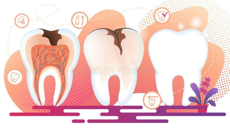 Υγιής και ανθυγειινή στάση δοντιών σε ακατέργαστο αποσύνθεση ελεύθερη απεικόνιση δικαιώματος