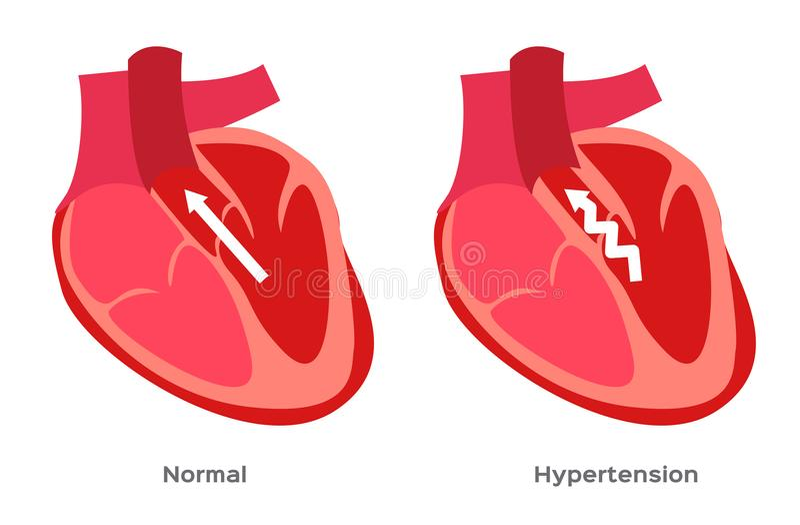 Υπέρταση, υψηλή πίεση αίματος/ανθρώπινη ανατομία ελεύθερη απεικόνιση δικαιώματος