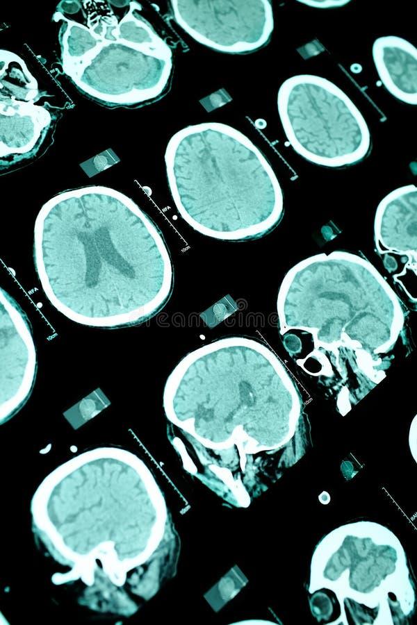Υπόβαθρο ανίχνευσης CT στοκ εικόνες