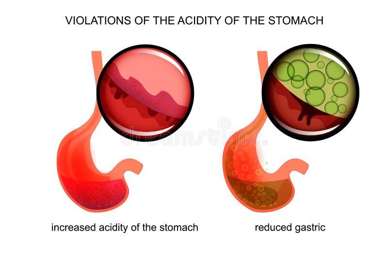 Υψηλή και χαμηλή οξύτητα του στομαχιού διανυσματική απεικόνιση