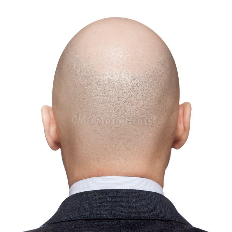 Φαλακρό κεφάλι ατόμων στοκ εικόνα