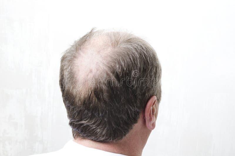Φαλακρό πίσω μέρος του κεφαλιού των ατόμων Έννοια της φαλάκρας στοκ εικόνες
