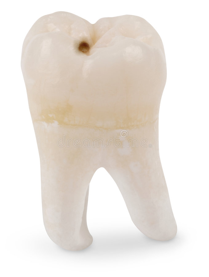 φρόνηση δοντιών κοιλοτήτων στοκ εικόνα