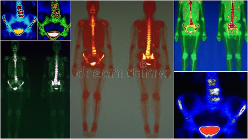 Φυματίωση οσφυικών σπονδυλικών στηλών, πυρηνική ιατρική στοκ φωτογραφίες με δικαίωμα ελεύθερης χρήσης