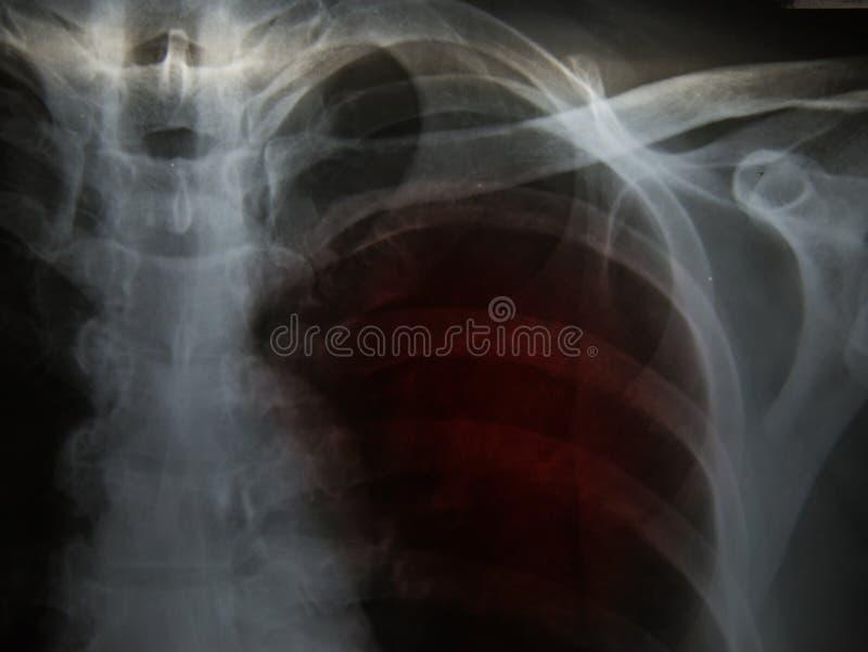 Φυματίωση πνευμονικής φυματίωσης: Η θωρακική ακτίνα X παρουσιάζει φατνιακό infilt στοκ εικόνες