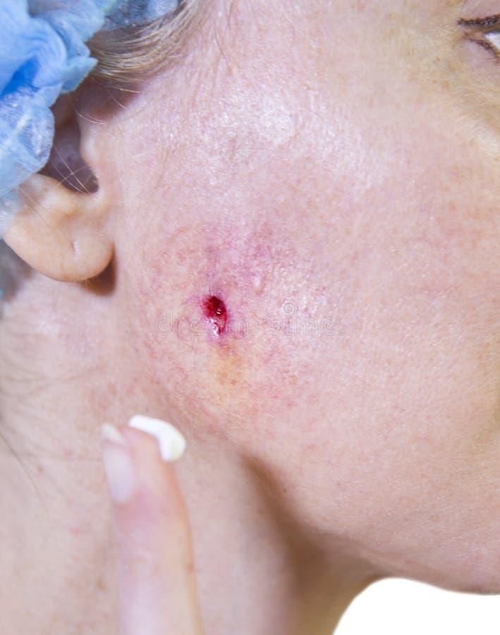 Φωτογραφία από μια σειρά: Cosmetology περιπλοκές η γυναίκα διαγράφει ένα ασβεστοκονίαμα για το φλερτάρισμα στο συρίγγιο μετά από  στοκ φωτογραφίες