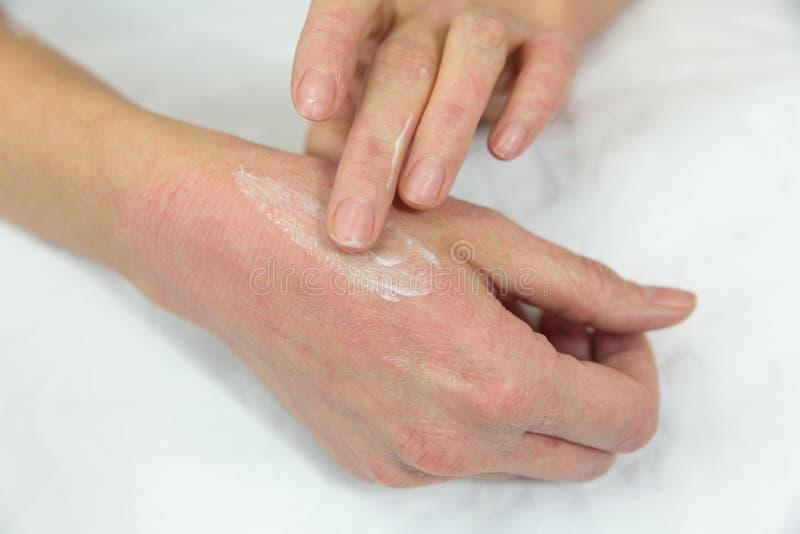 Χέρια της γυναίκας με τα προβλήματα δερμάτων στοκ εικόνα με δικαίωμα ελεύθερης χρήσης