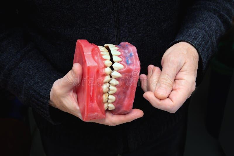 Χέρια Men's με το οδοντικό κόκκινο πρότυπο κεριών στοκ εικόνα με δικαίωμα ελεύθερης χρήσης